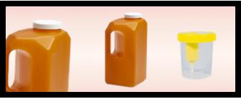 Prélèvement urine/selles/sperm